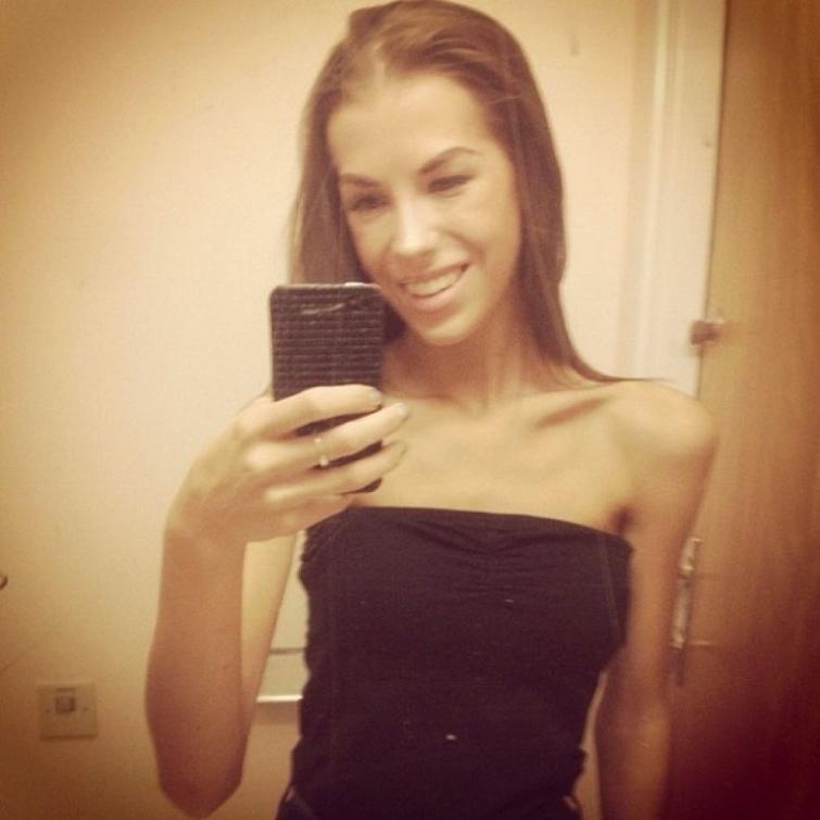 Essa garota era anoréxica, resolveu mudar e chocou com o resultado!
